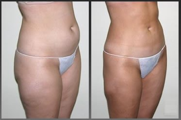 VASER Lipo abdomen & thighs After