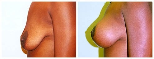 Saline Implants & Breast Lift Before