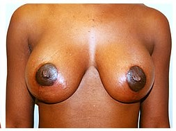 Saline Implants & Breast Lift After