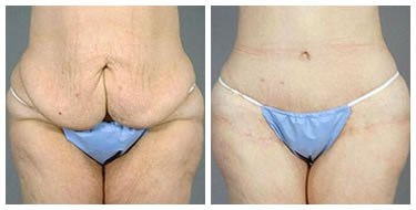 tummy tuck post bariatric After