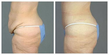 tummy tuck post bariatric Before