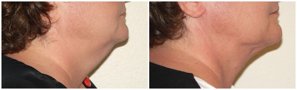 Smartlipo of neck Before