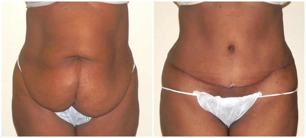 Abdominoplasty 8 weeks after tummytuck