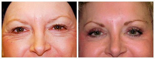 Upper and Lower Eyelid lift Before