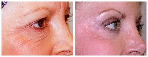 Upper and Lower Eyeyelid lift Before