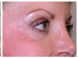 Upper and Lower Eyeyelid lift After