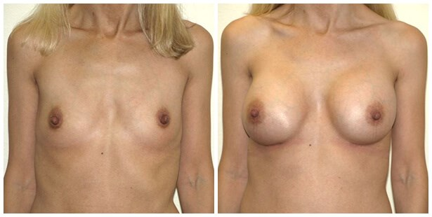 breast aug Before