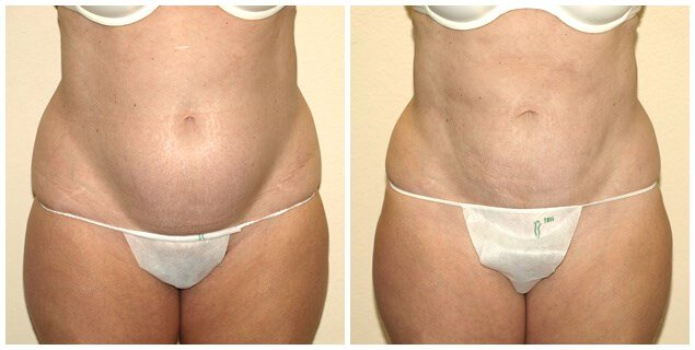 Smartlipo of abdomen After