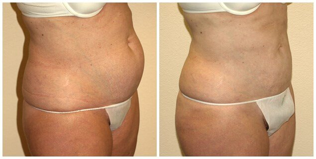 smartlipo of abdomen Before