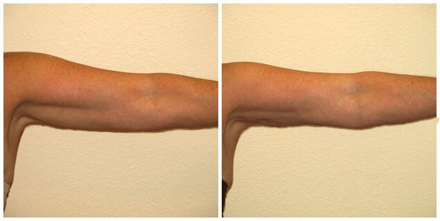 SMARTLIPO of arms After