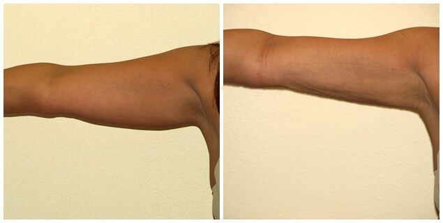 Smartlipo  of Arms Before