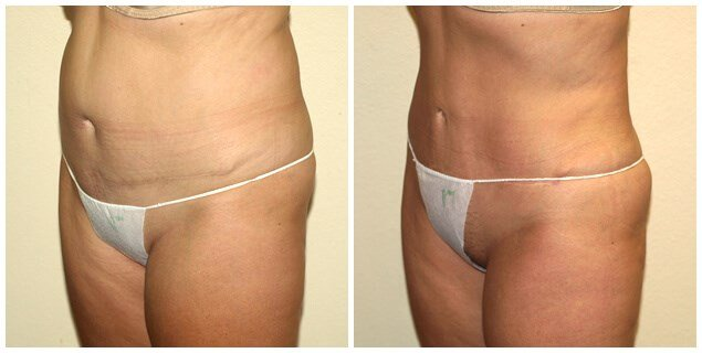 Smartlipo after tummytuck Before