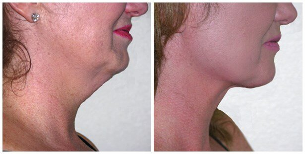 Vaser Liposuction of neck Before