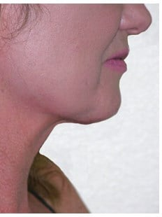 Vaser Liposuction of neck After