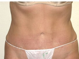 Smartlipo after tummytuck After