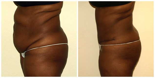Abdominoplasty with Lipo After