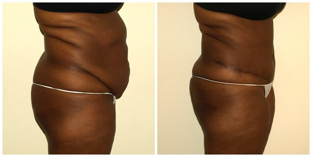 Abdominoplasty with Lipo Before