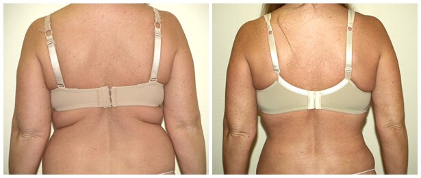 VASER Liposuction of Back Before