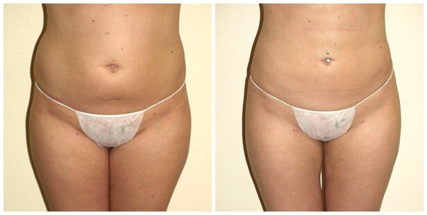 VASER Liposuction of Abdomen Before