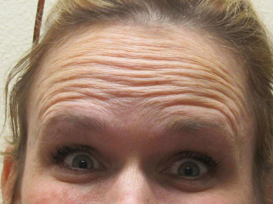 Botox erases forehead lines Before