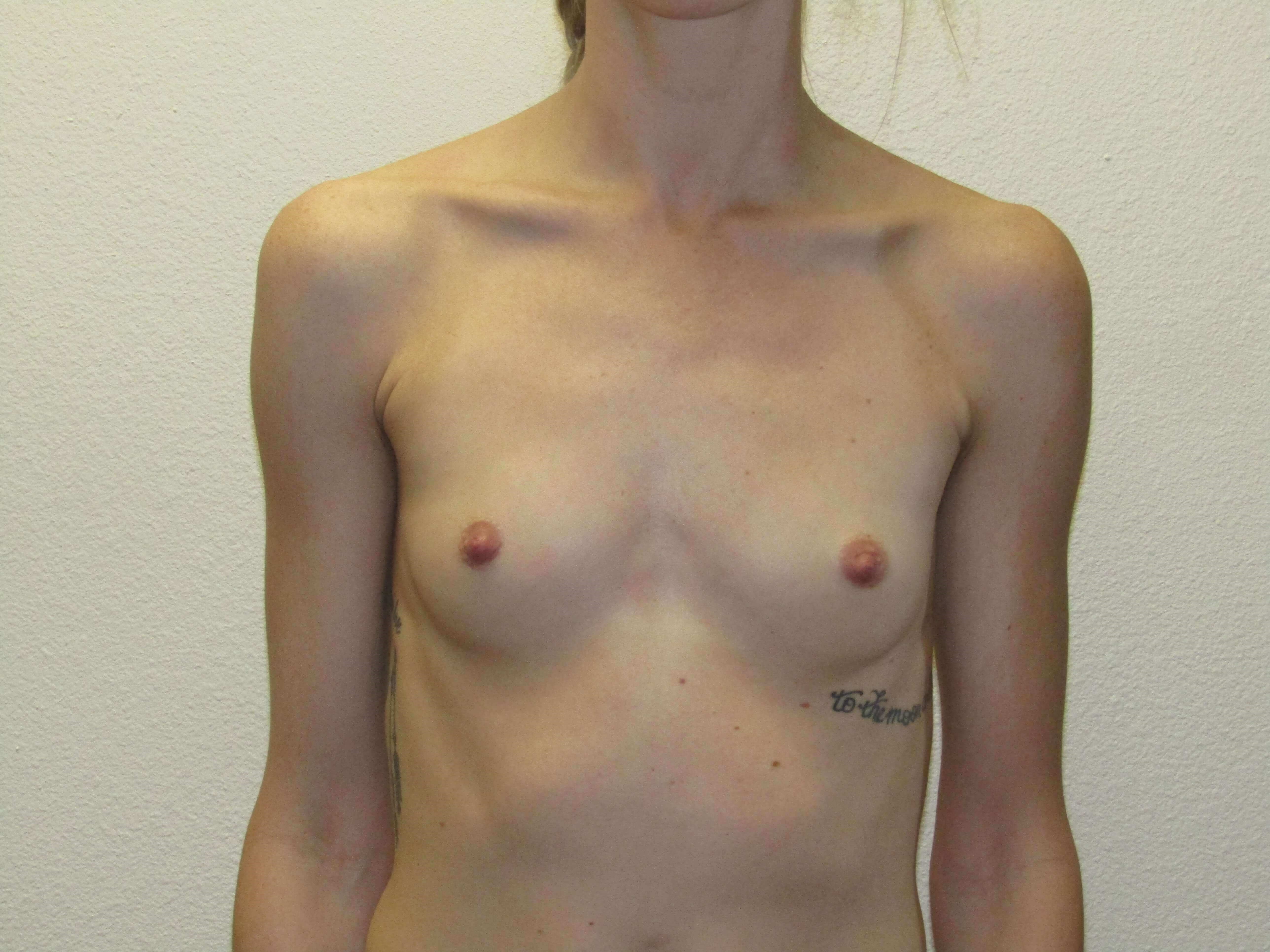 Saline Breast Implants Before