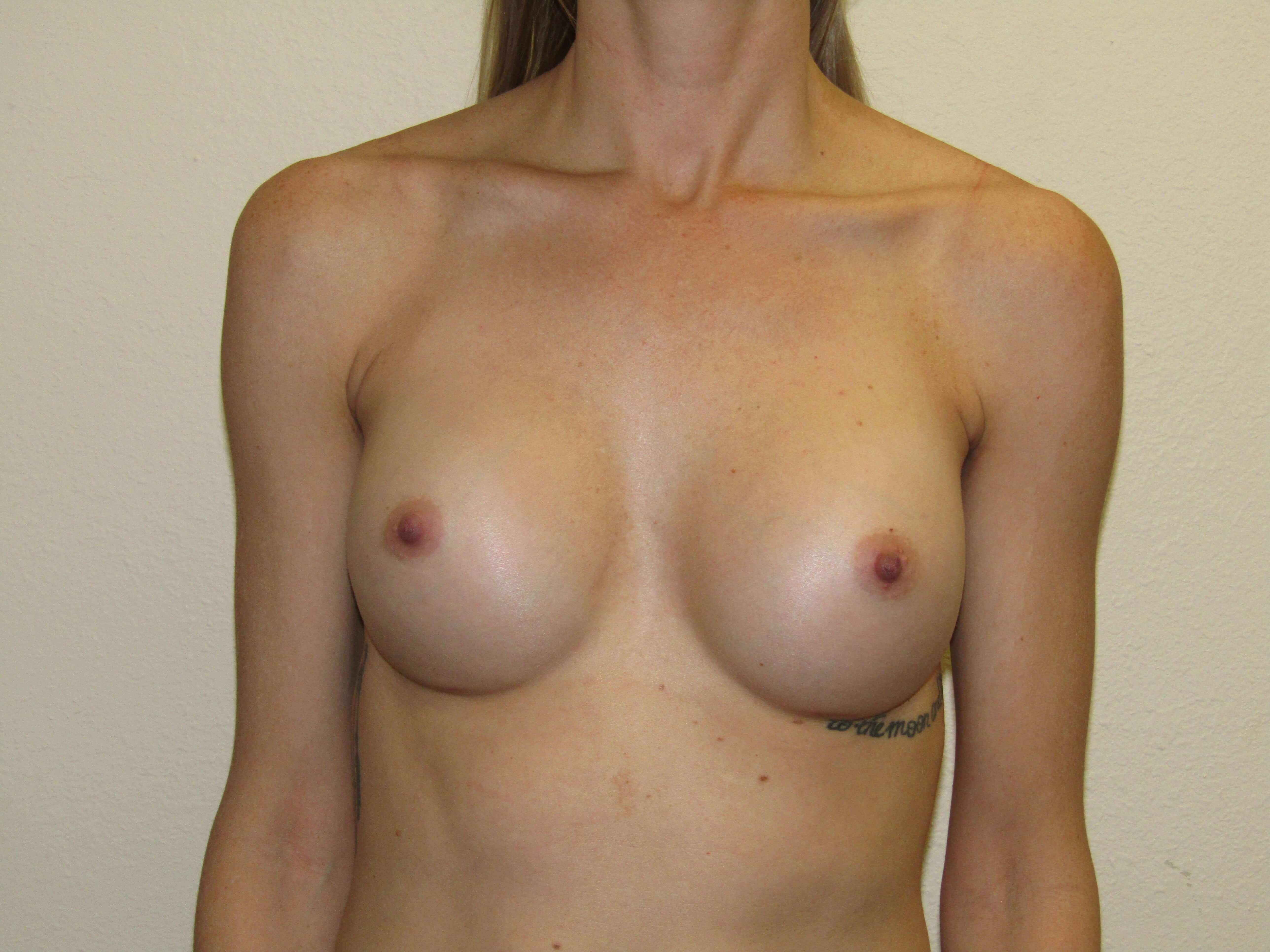 Saline Breast Implants After