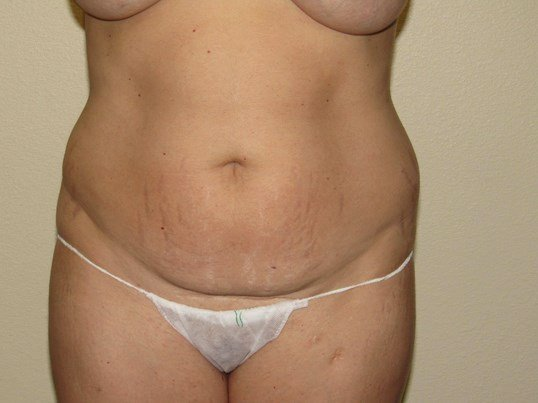Mommy Makeover ; Tummytuck Before