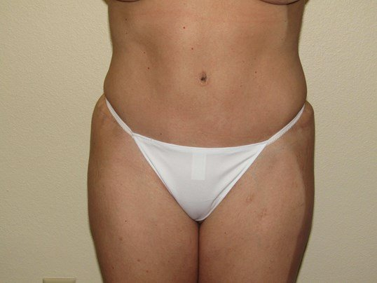 Mommy Makeover ; Tummytuck After