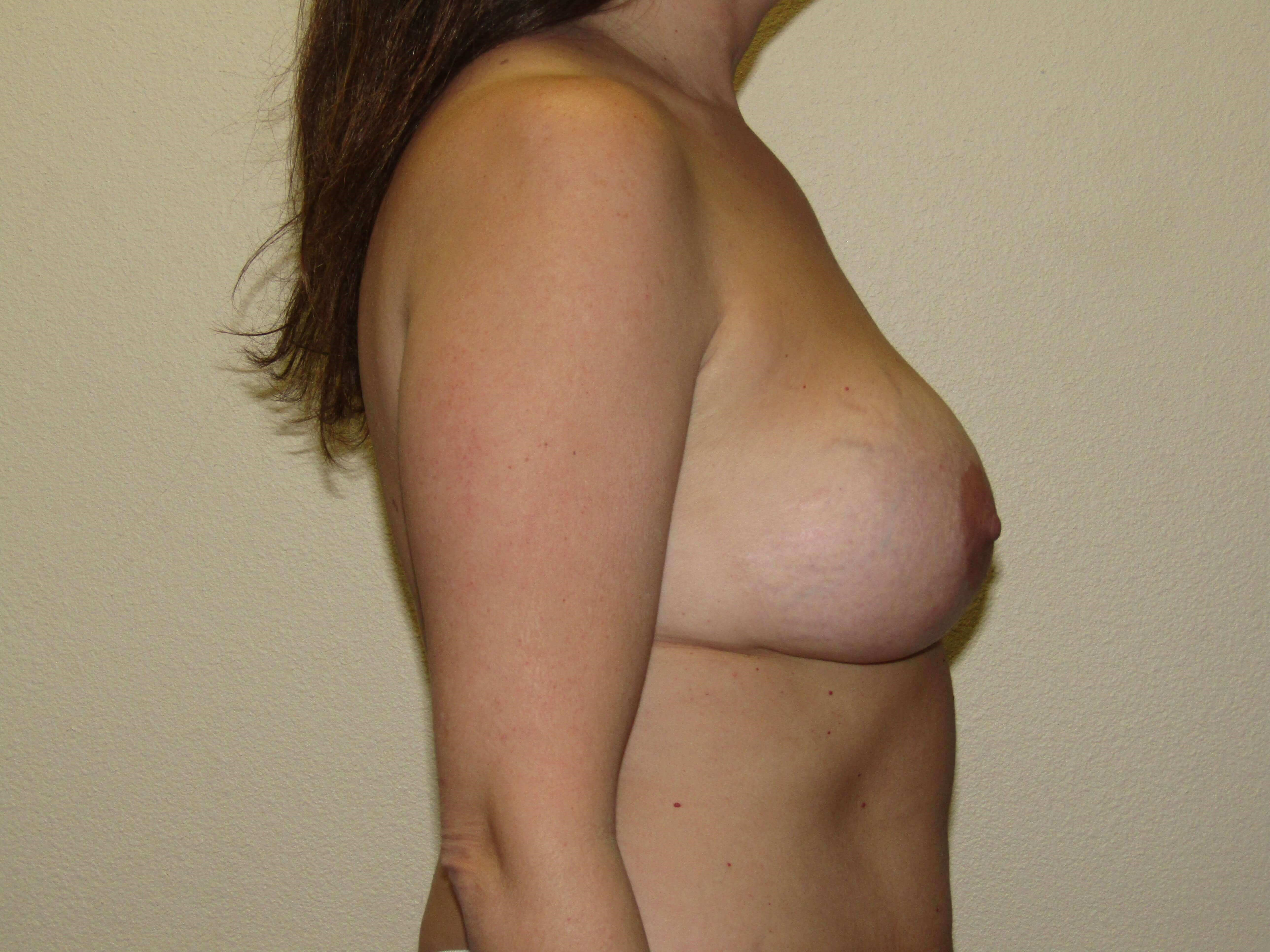Mommy Makeover ; Breast  Before