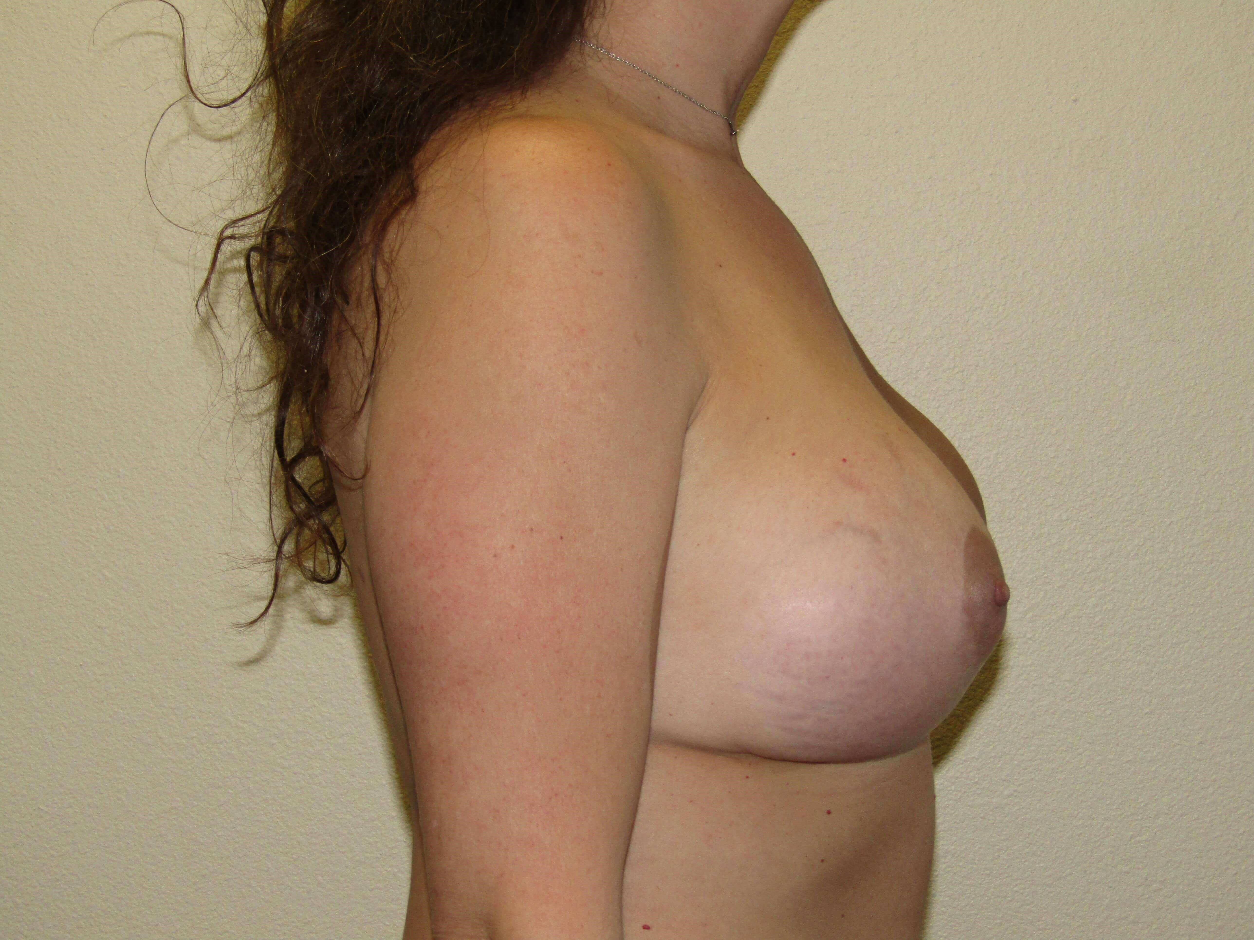 Mommy Makeover ; Breast  After