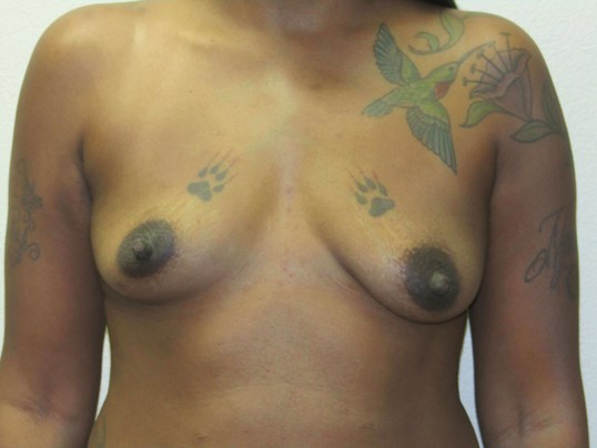 Breast Augmentation mini lift Before