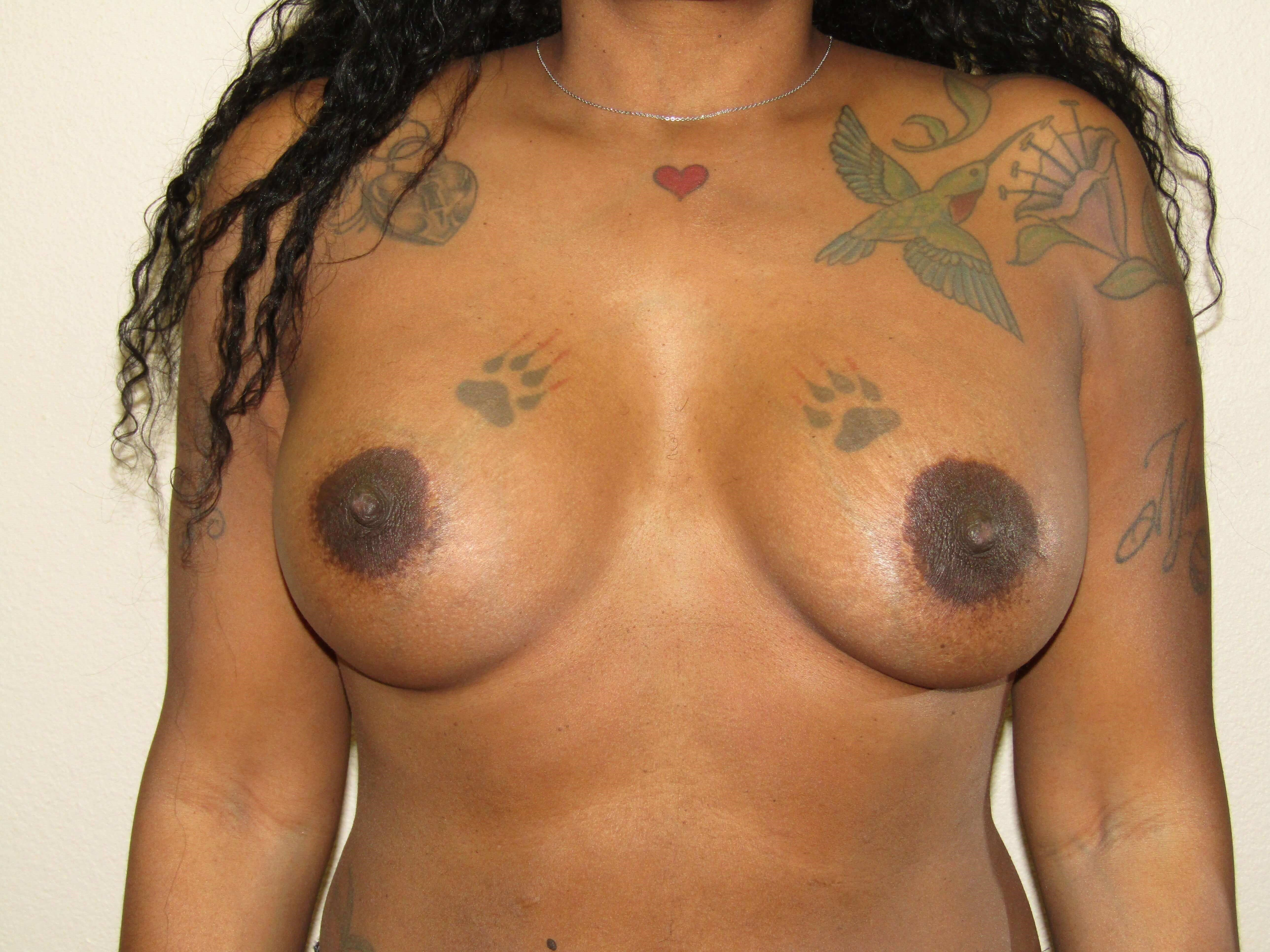 Breast Augmentation mini lift 2 1/2 years postop