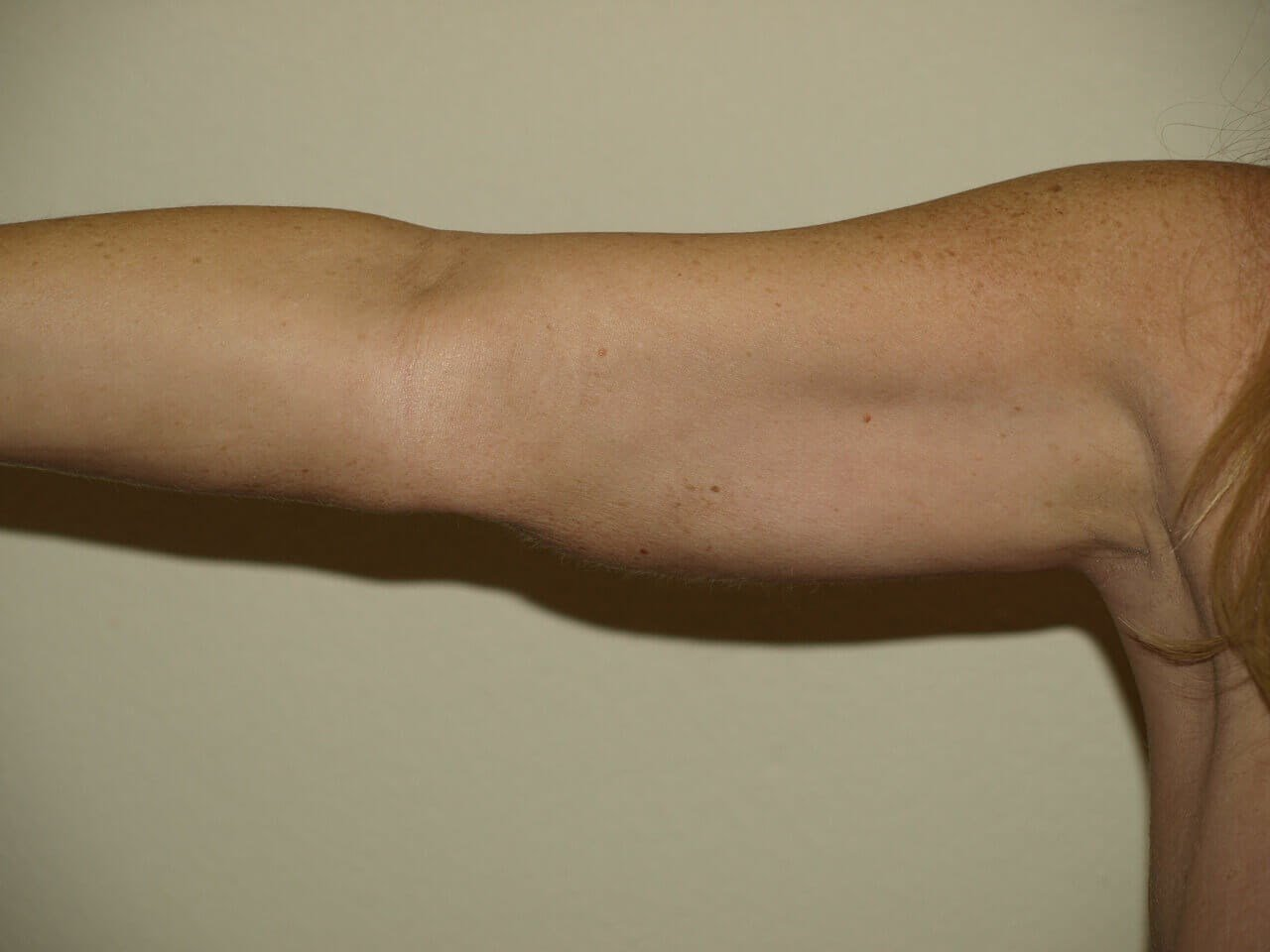 VASER liposuction of arms After