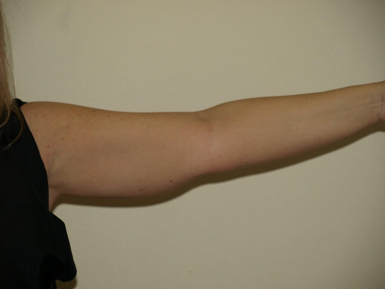 VASER liposuction of arms Before