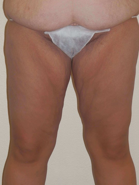 Thigh lift and tummytuck Before