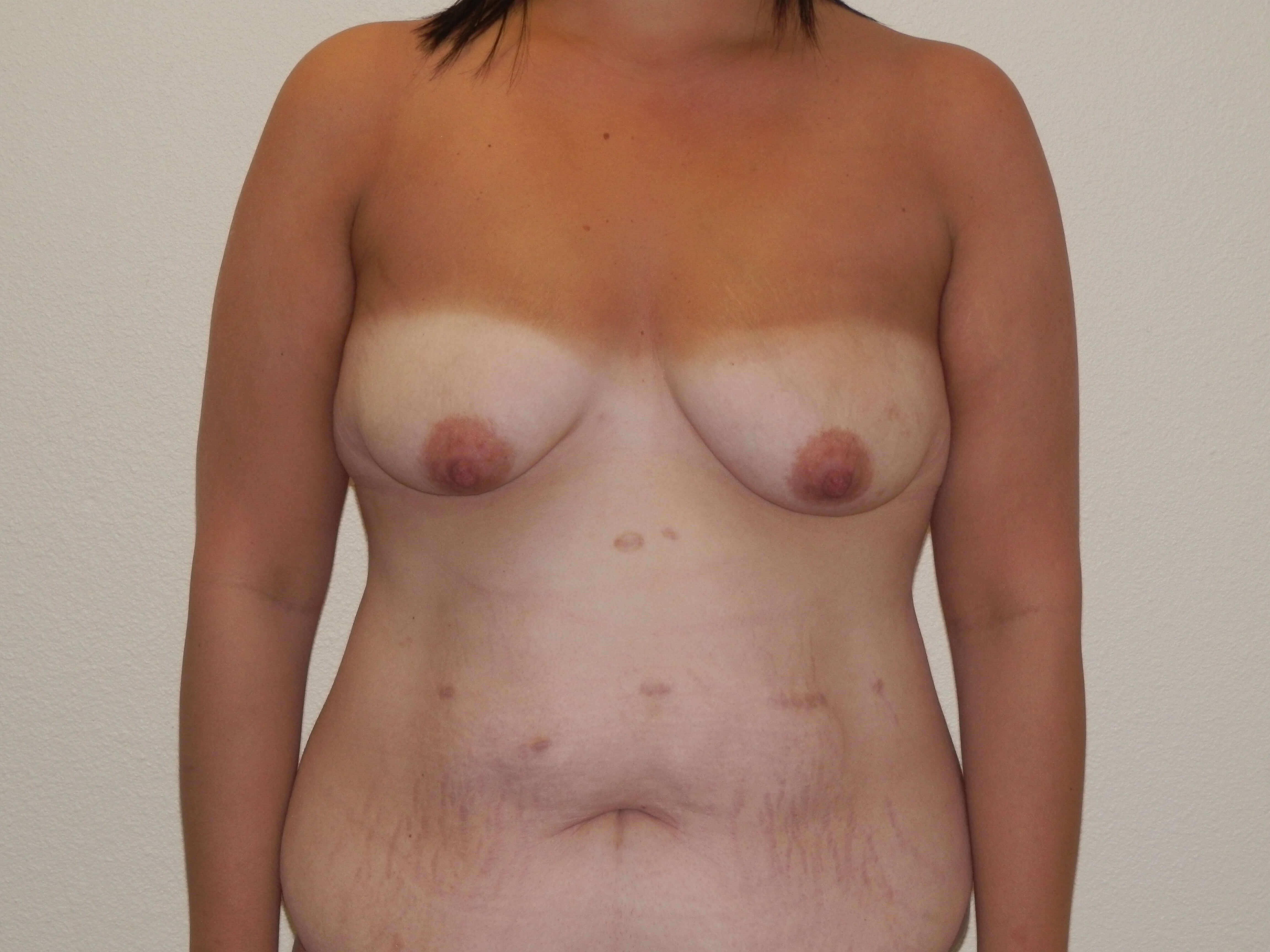 Breast augmentation minilift Before