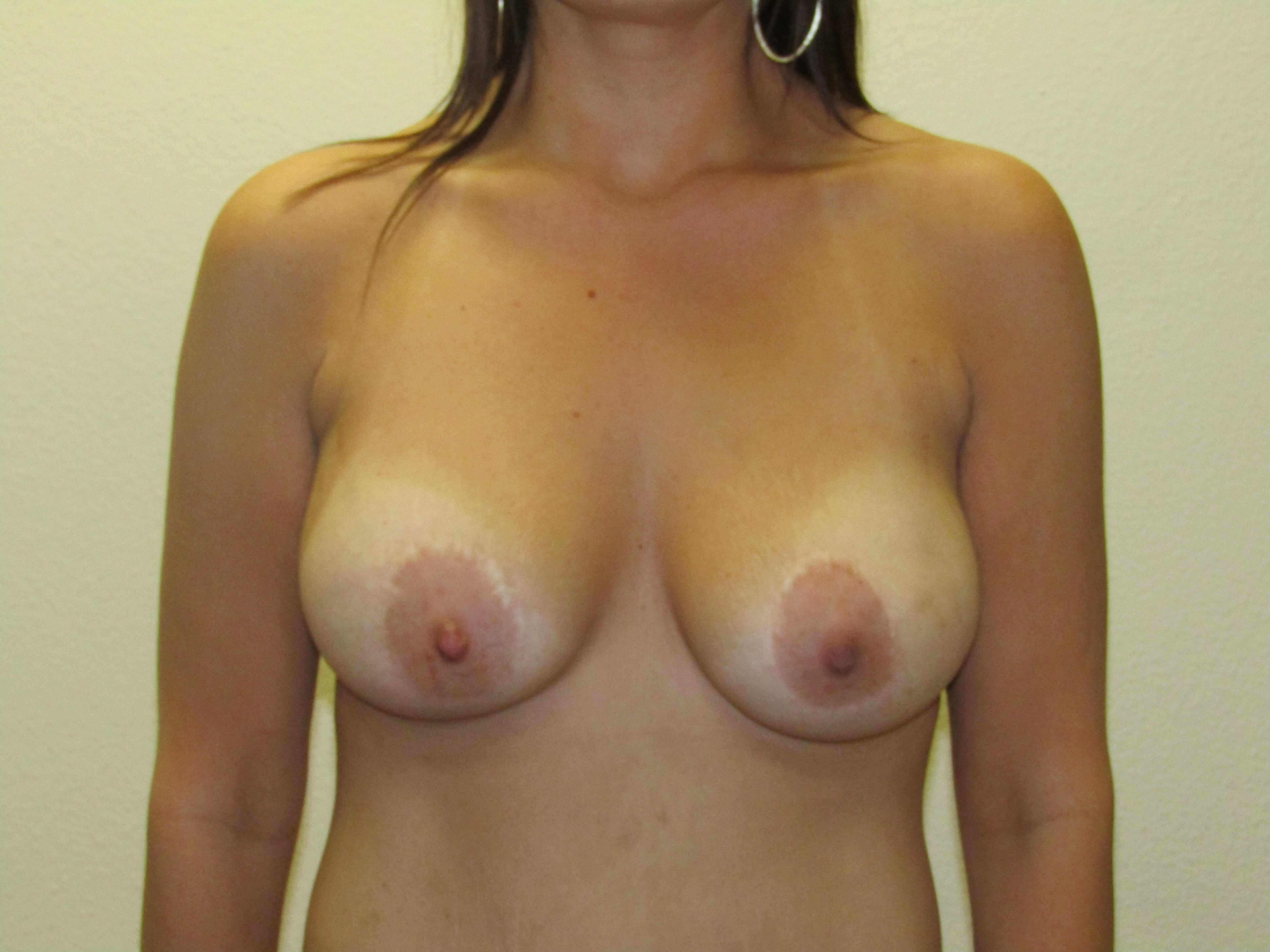 Breast augmentation minilift After