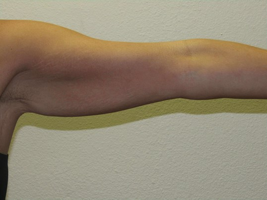 Axillary Armlift Before