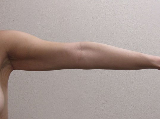Axillary Armlift After