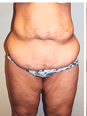 After weight loss surgery After bariatric surgery