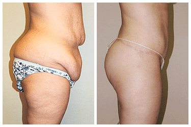 After weight loss surgery After Tummytuck