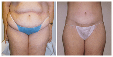 Tummytuck post Bariatric Before