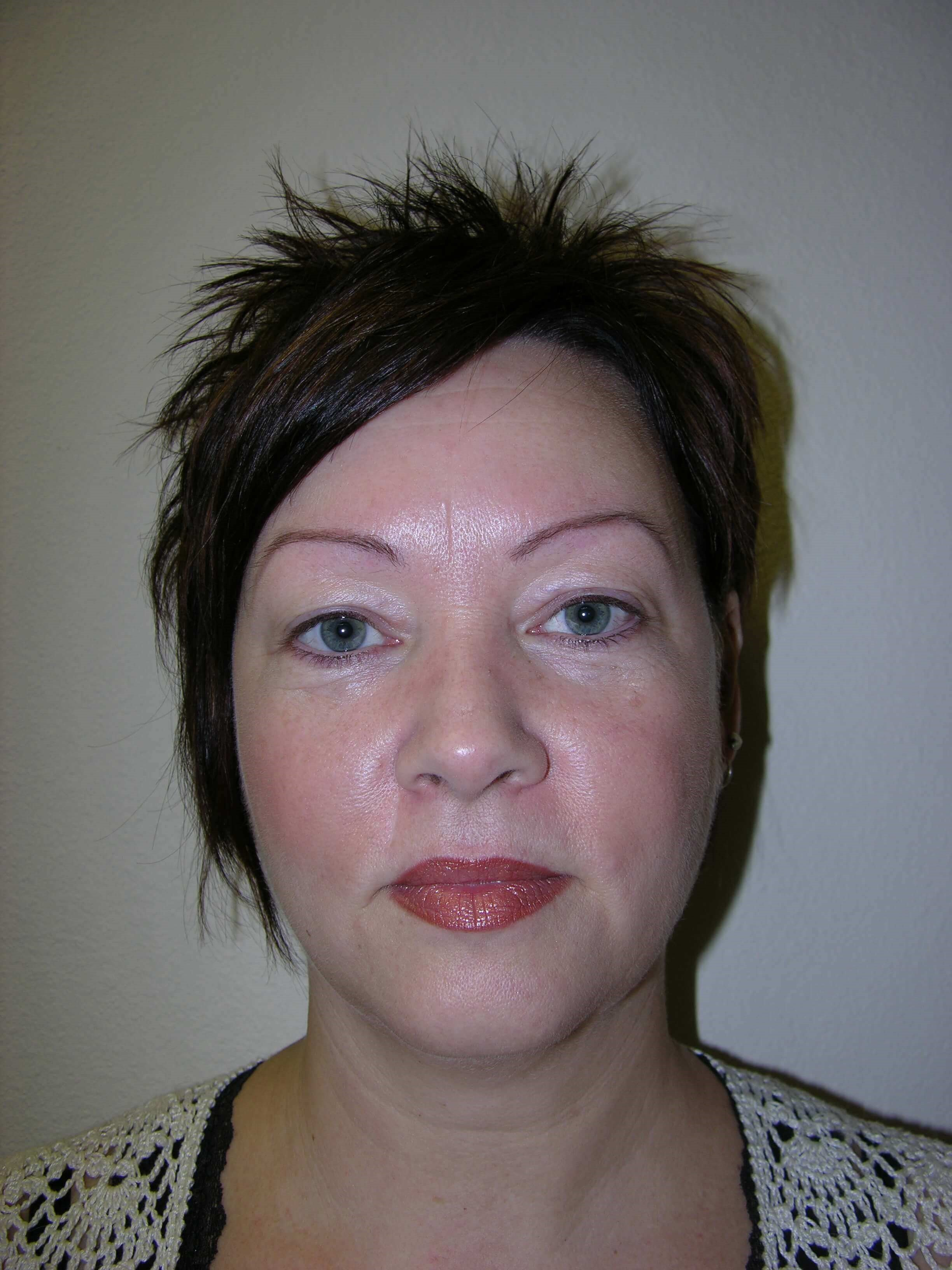 Upper Eyelid Before