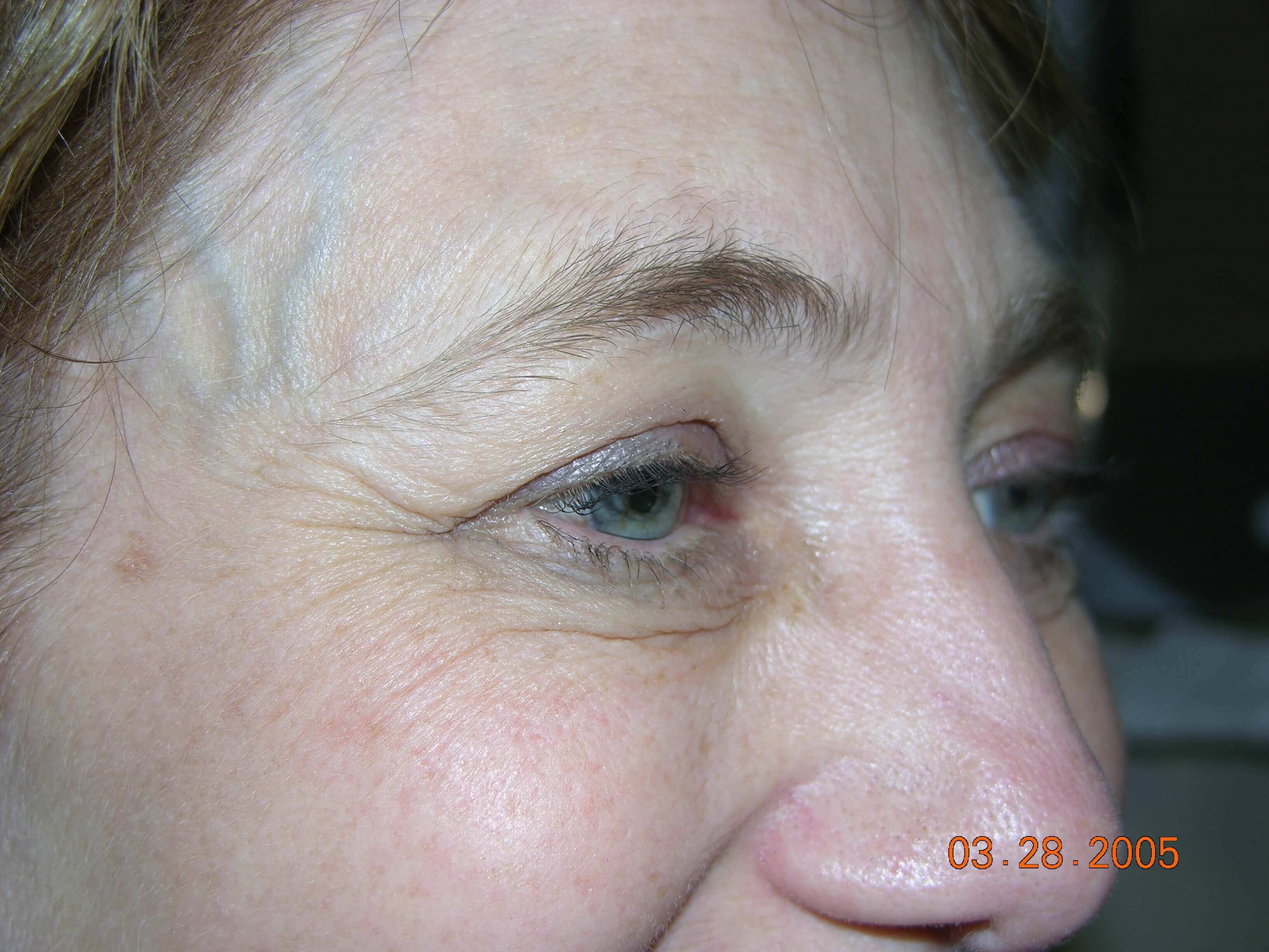 eyelid lift Before