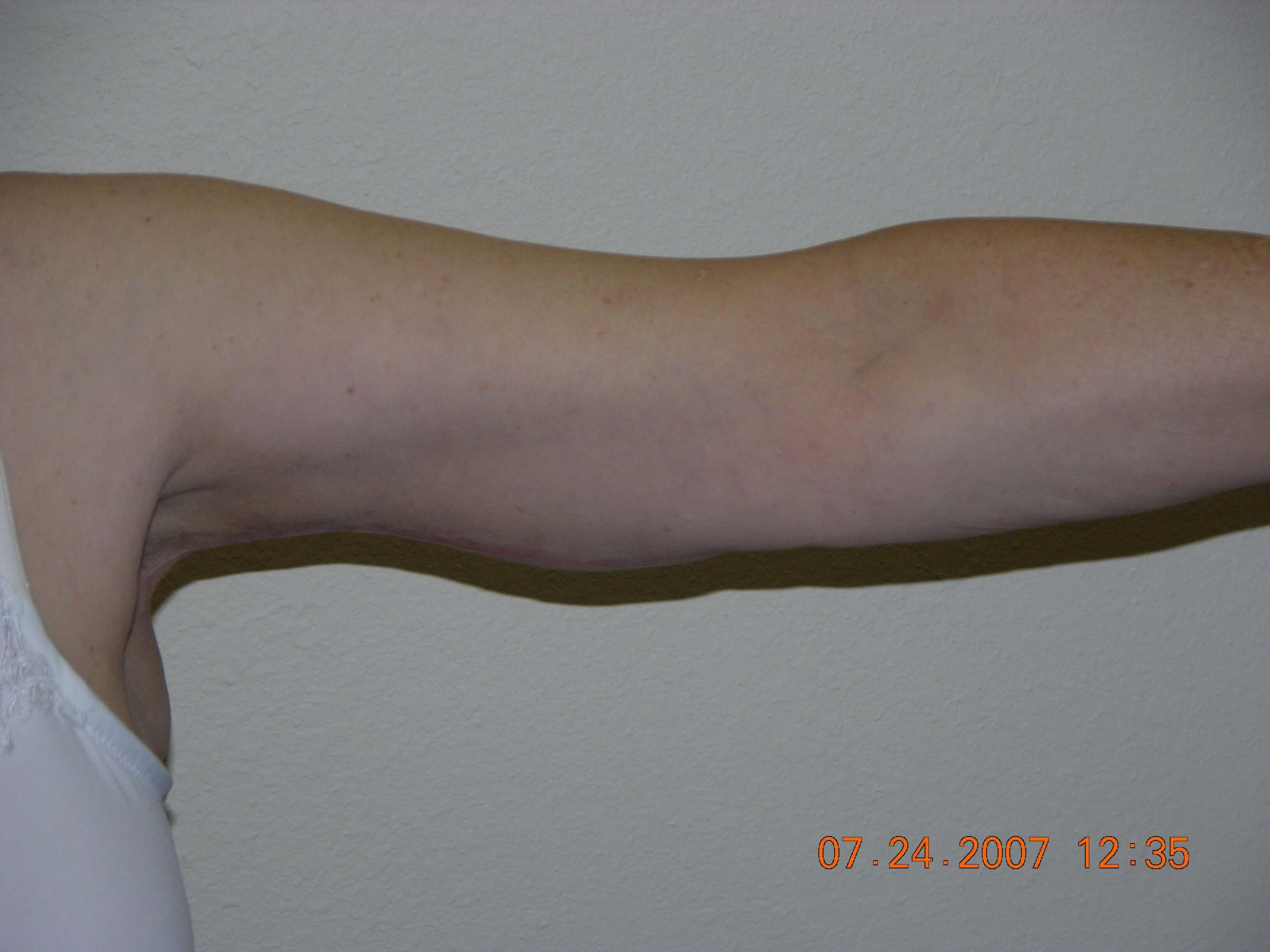 Bilateral Armlift After