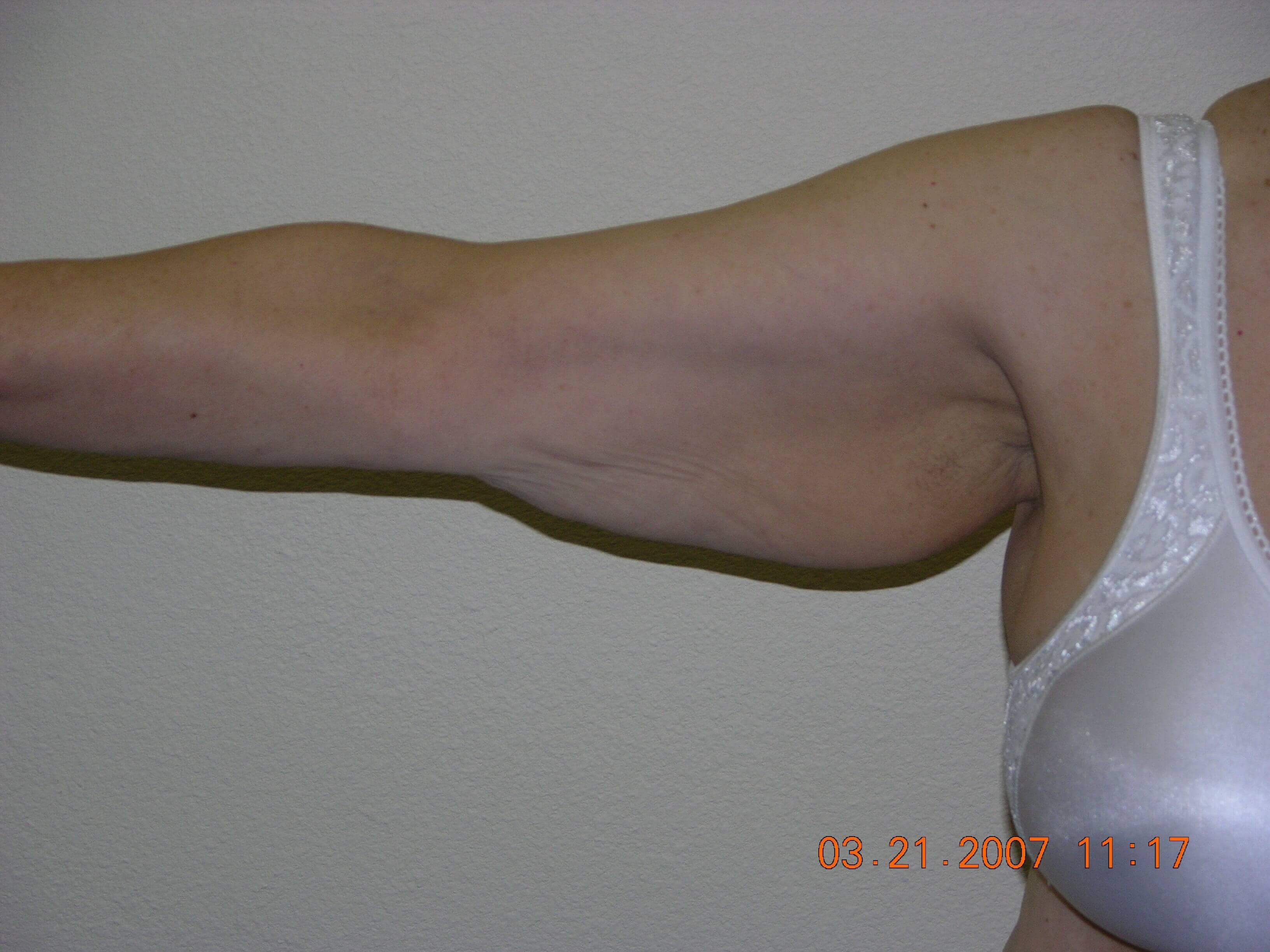 Bilateral Armlift Before