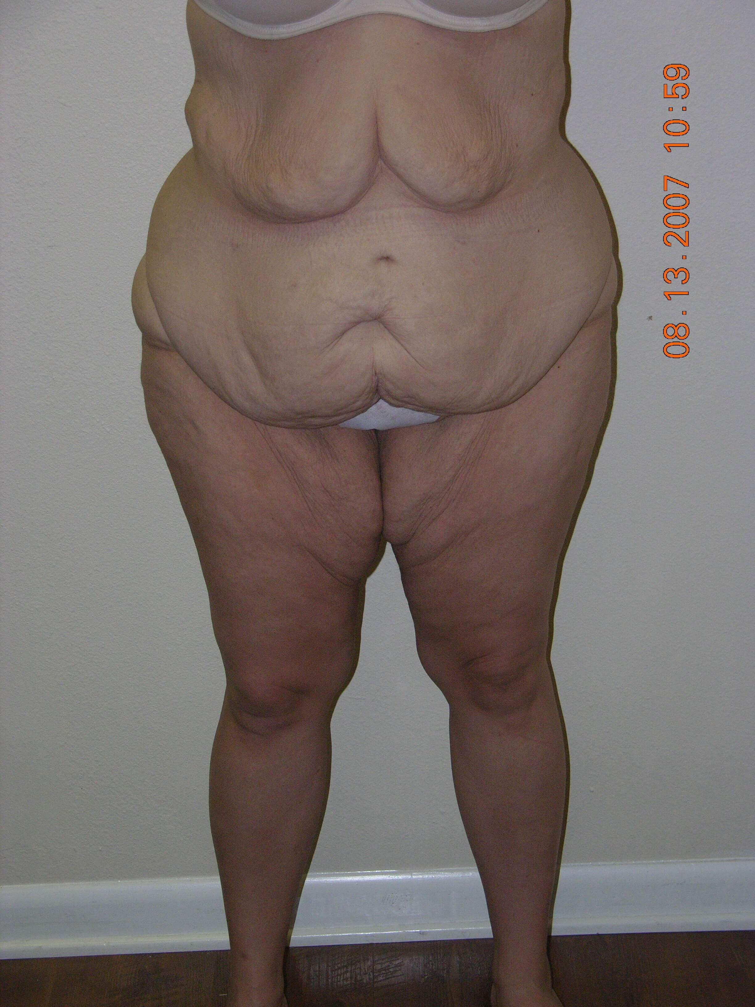 After Weight Loss Surgery Before