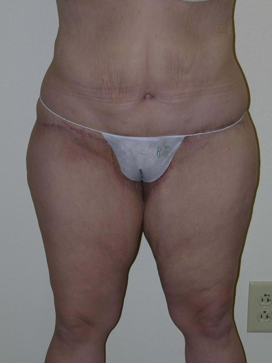 After Weight Loss Surgery After