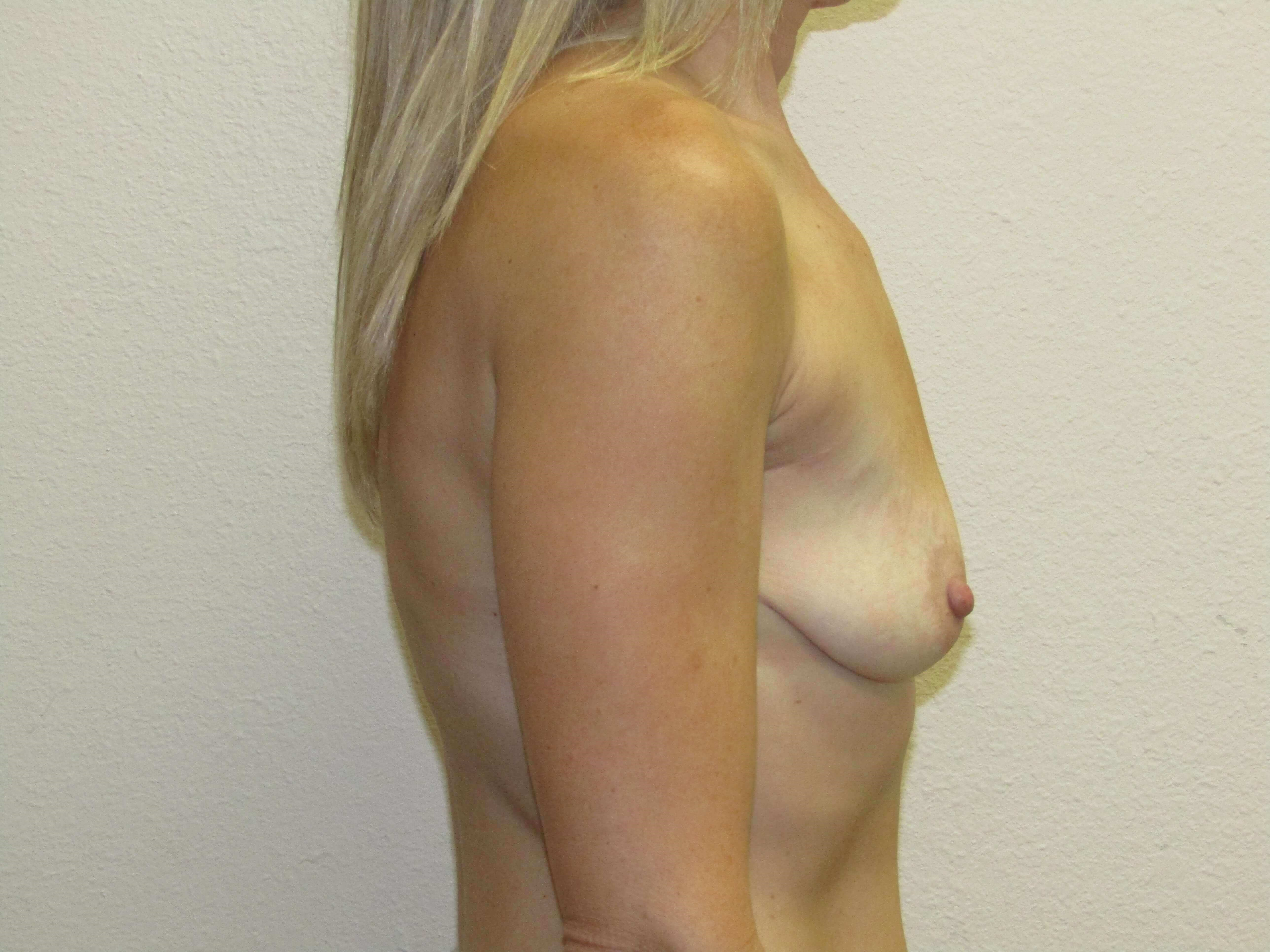 Breast enhancement Before