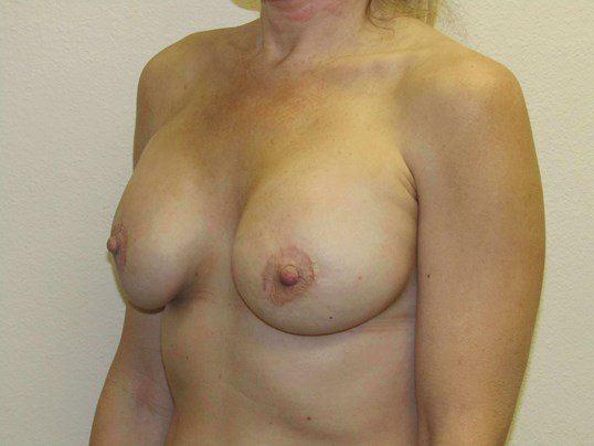 Breast Enhancement After
